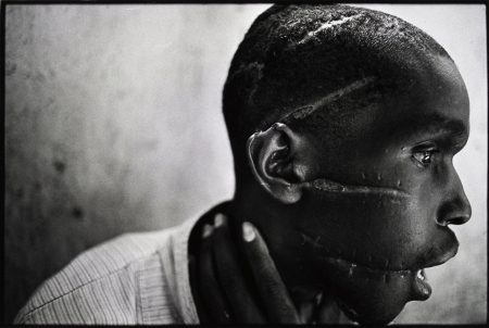 James Nachtwey's photo of a Hutu man who was mutilated with machetes because he did not support the genocide in Rwanda.