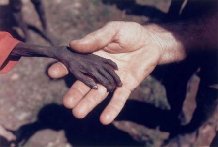 Missionary holding hand of starving child.