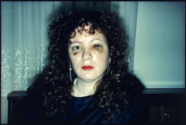 nan-goldin-nan-one-month-after-being-battered-1984