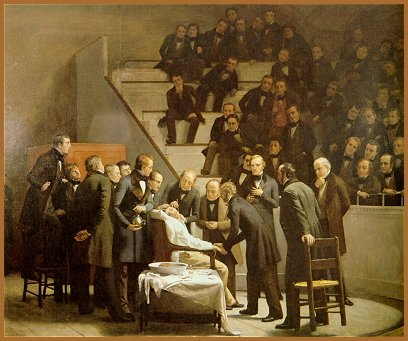 An artist's rendering of William Morton's 1846 use of general anesthesia, an event that became much more well known than Crawford's 1842 breakthrough.