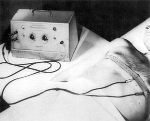 Zoll pacemaker.