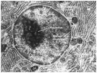 A scanning electron micrograph of a cell nucleus.