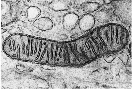 A photograph of a mitochondrion.