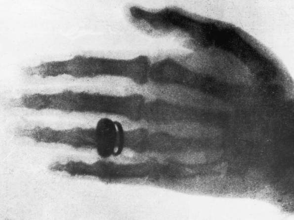 first x-ray